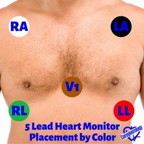 5 Lead Heart Monitor Placement by Color