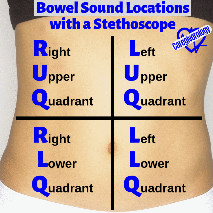 Bowel Sound Locations with a Stethoscope