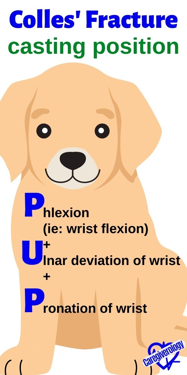 Colles' Fracture, casting position: PUP mnemonic